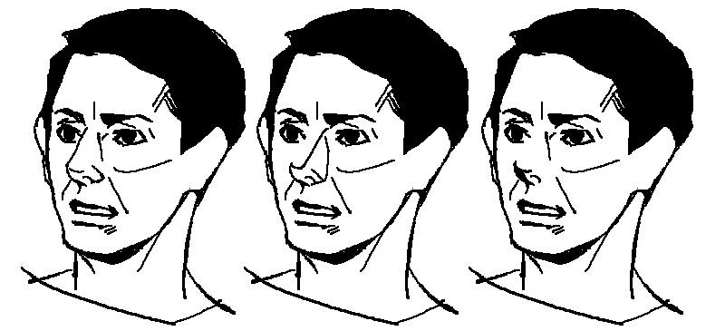 鼻の種類~例1